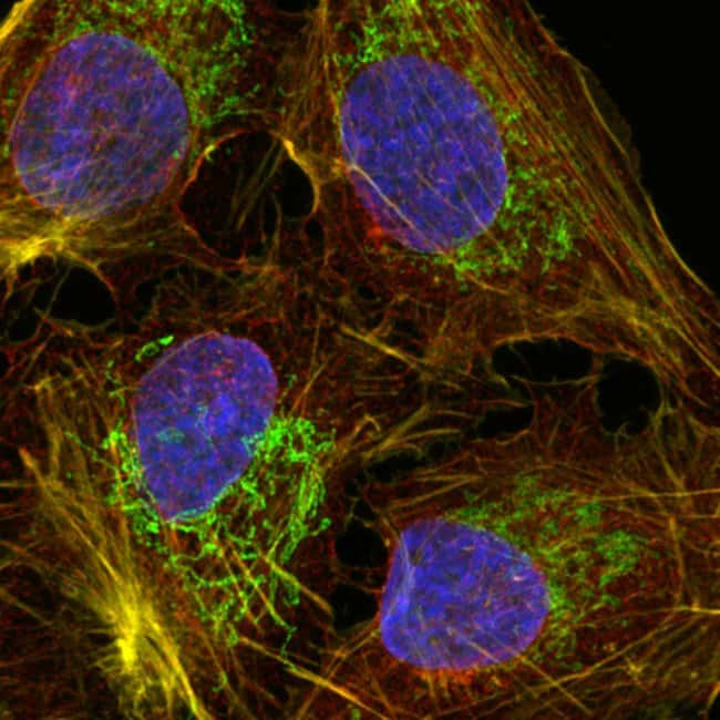 U2-OS cells mounted with Prolong Glass and imaged with a confocal microscope